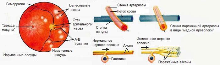 Развитие ангиосклероза