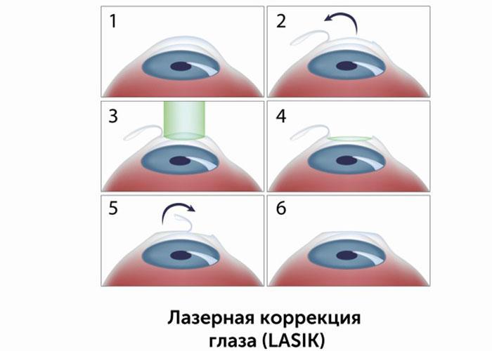 Метод ласик для лечения астигматизма