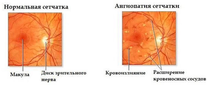 Проявление ангиопатии