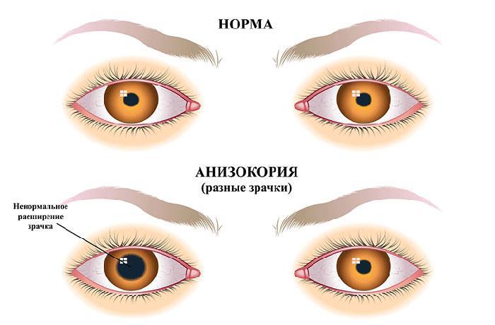 Проявление анизокории