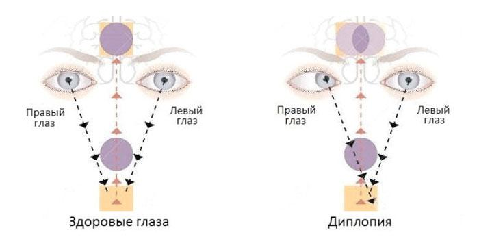 Зрение при диплопии