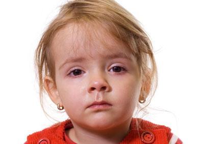 Что такое халязион и как вылечить заболевание у ребенка
