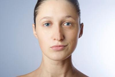 Лагофтальм глаза: причины, симптомы, лечение || Симптом заячий глаз