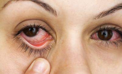 Глазные капли от коньюктивита взрослым с антибиотиками