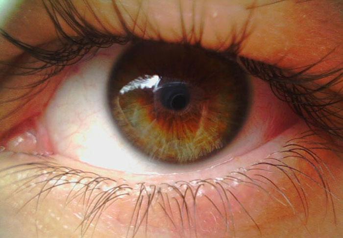 Ангиопатия сетчатки глаза - симптомы, причины и лечение