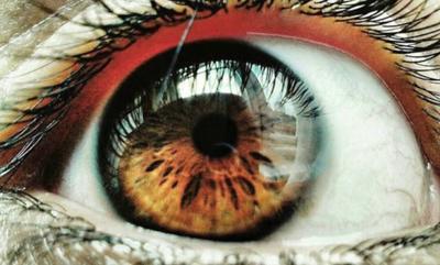 Мутные глаза у человека причины