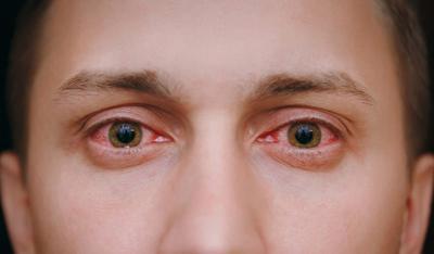 Почему в глазах появляется гной