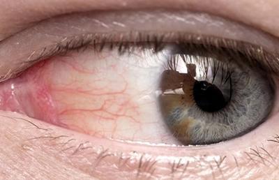 Красные капилляры в глазах как убрать