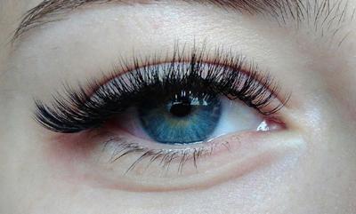 Водянистый отек под глазом причины. Причины появления и способы устранения отеков под глазами