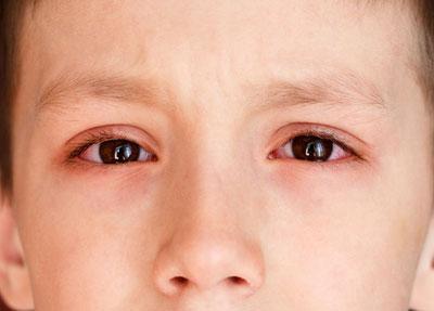 Тетрациклиновая мазь глазная с какого возраста