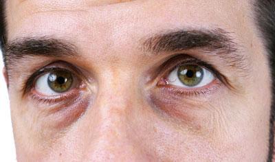 Мешки под глазами у мужчин [причины и как убрать]