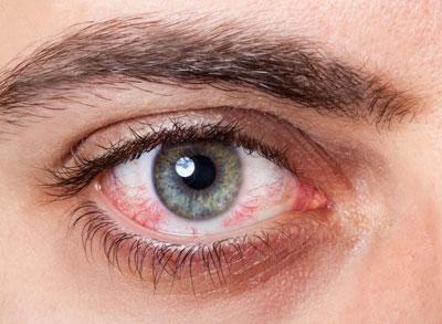 Капли против синдрома сухого глаза