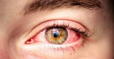 Глазные капли виксипин как открыть флакон