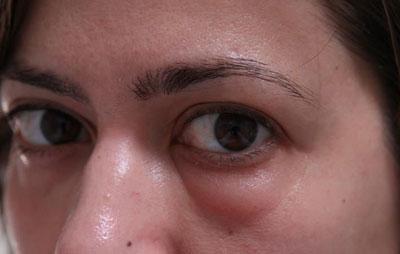 Отек лица глаз при аллергии — Все про аллергию