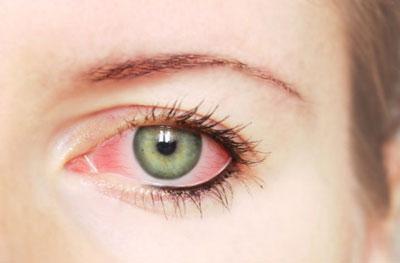 Тетрациклиновая мазь для глаз: инструкция по применению