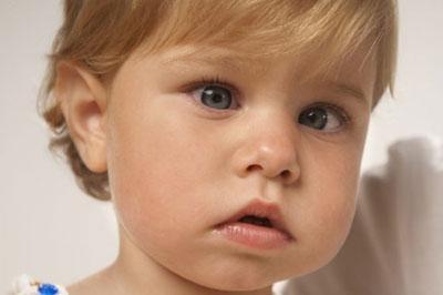 Методы лечения косоглазия у детей