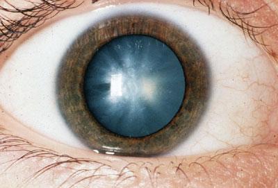Лечение катаракты у пожилых людей народными средствами без операции