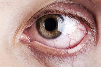 Лечение глаукомы у пожилых людей народными средствами