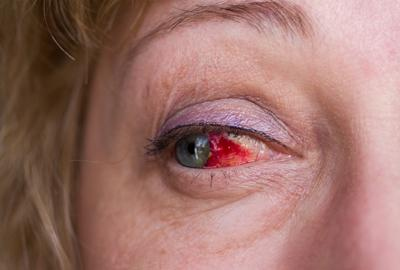 Обезболивающие глазные капли после травмы глаз c противовоспалительным эффектом, список препаратов