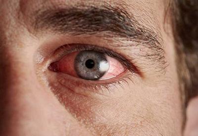 Хламидийный конъюнктивит (глазной хламидиоз): лечение || Хламидийный конъюнктивит симптомы и лечение