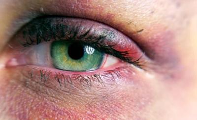 Как быстро избавиться от синяка под глазом из-за удара: эффективные средства