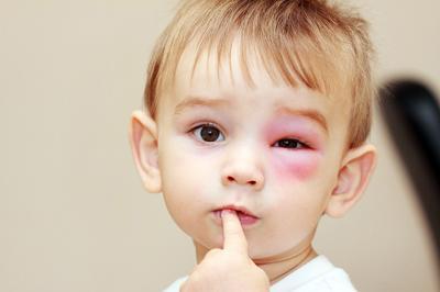 Опухло под глазом у ребенка
