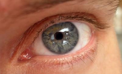Покраснение век глаз: причины и лечение