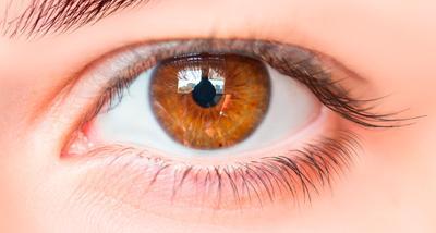 Конъюнктивальная инъекция глаза
