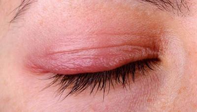 Покраснение верхнего века глаза лечение