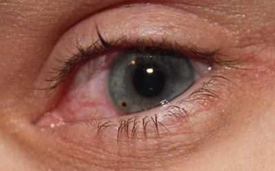 Как убрать окалину из глаза