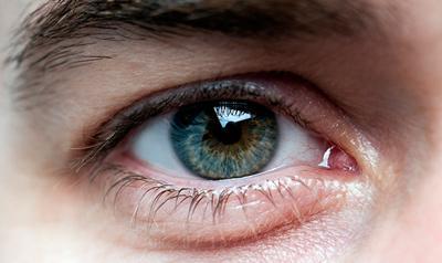 Лазерная дисцизия вторичной катаракты послеоперационный период
