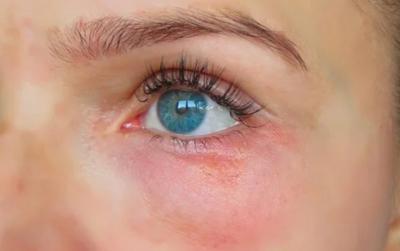 Красная точка возле глаза