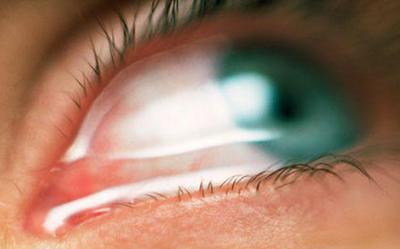 Какие капли капать при травме глаза