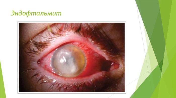 Как выглядит эндофтальмит