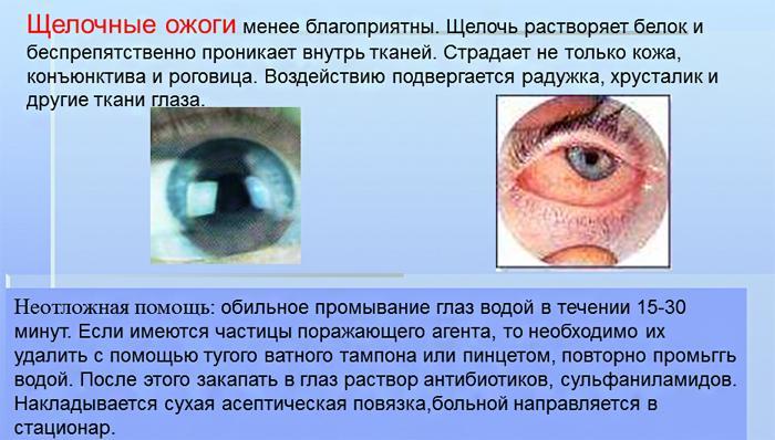 Щелочные ожоги глаз