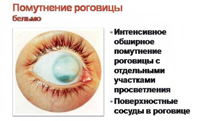 Как выглядит бельмо на глазу