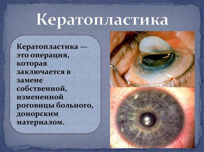 Что такое кератопластика