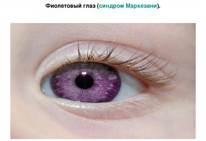 Синдром Маркезани