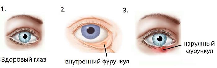 Внутренний и наружный фурункул(чирей) на глазу