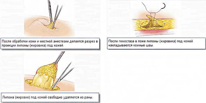Хирургическое удаление жировика