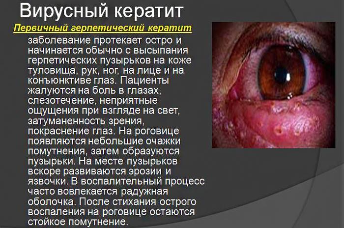Симптомы вирусного кератита