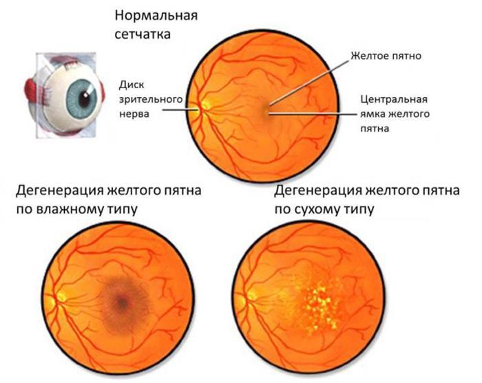 Виды дистрофии сетчатки глаза