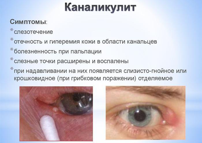 Симптомы каналикулита