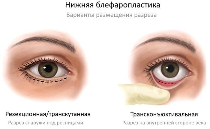 Виды разрезов при нижней блефаропластике