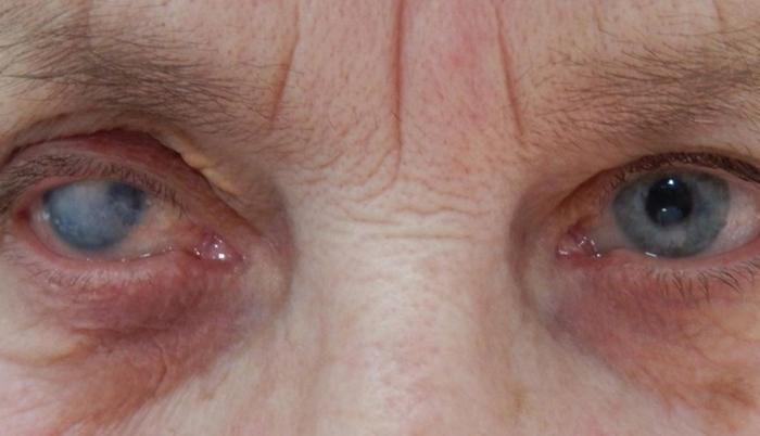 Симптомы бельма на глазу