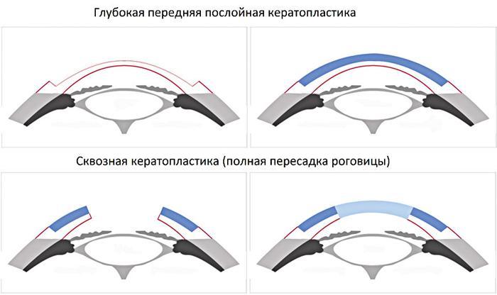 Методы хирургического лечения бельма на глазу