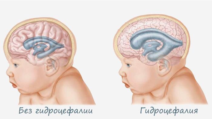 Симптомы водянки головного мозга (гидроцефалии) у новорожденных