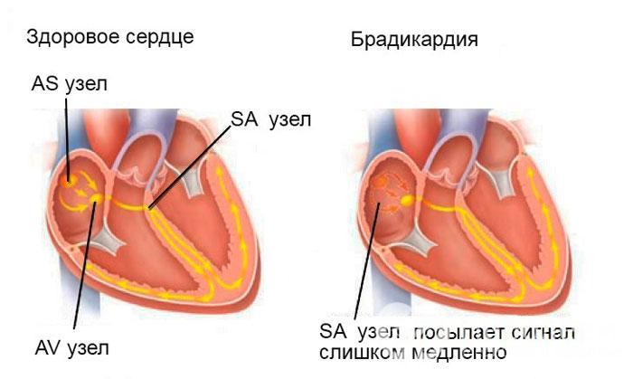 Признаки брадикардии
