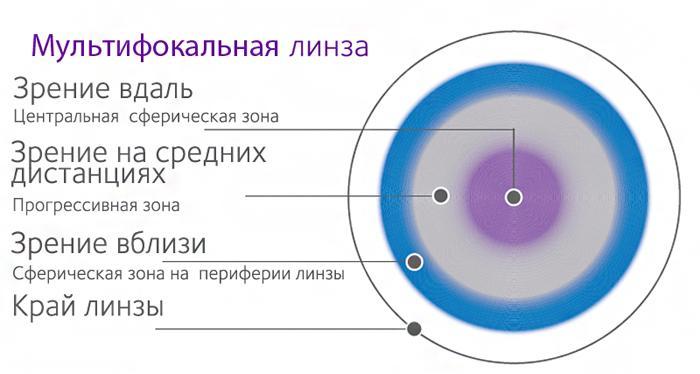 Особенности мультифокальной линзы
