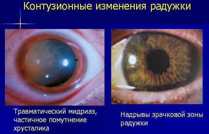 Симптомы травматического мидриаза